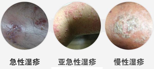 【湿疹】福州华研皮肤科湿疹门诊