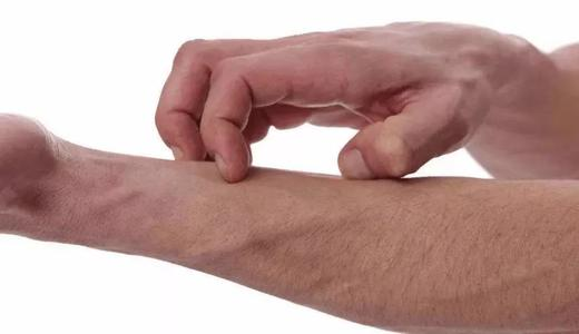 全身皮肤瘙痒是怎么回事
