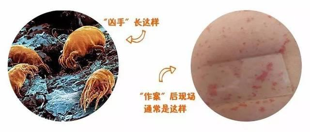 皮炎皮肤病是怎么引起的?皮肤科免费咨询
