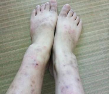 湿疹是怎么引起的?福州华研皮肤科:注意6点因素
