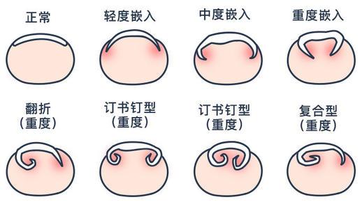 什么是甲沟炎?福建华研皮肤解析甲沟炎症状